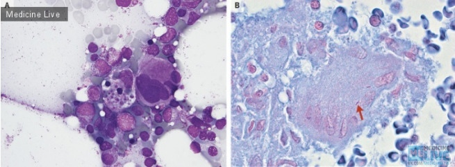 Гемофагоцитарный лимфогистиоцитоз, ассоциированный с диссеминированным туберкулезом