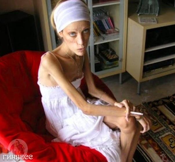 Изабель Каро - самая худая женщина в мире...????  кнрк