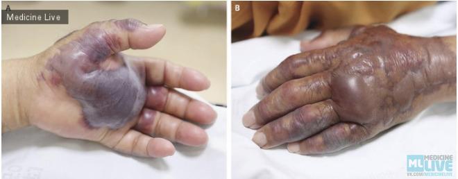 Инфекция, вызванная Vibrio vulnificus