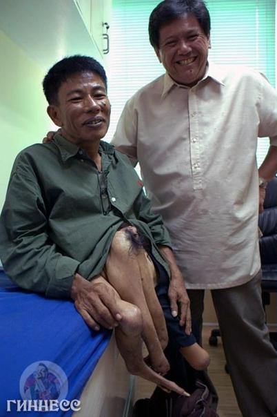 Филиппинец Руди Сантос (человек - осьминог), 69 лет,...