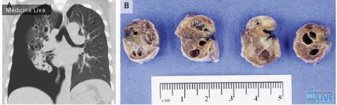 Лимфангиолейомиоматоз