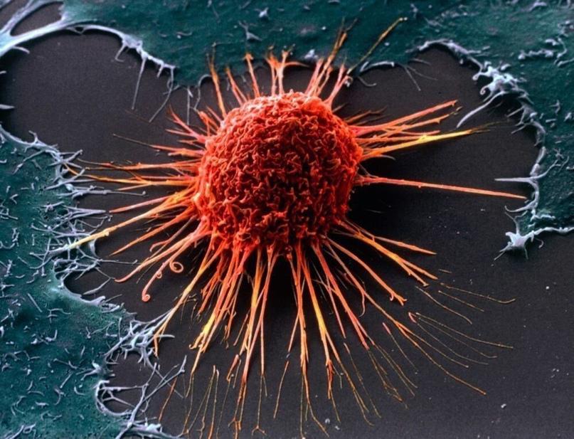 Почему людей поражает рак?