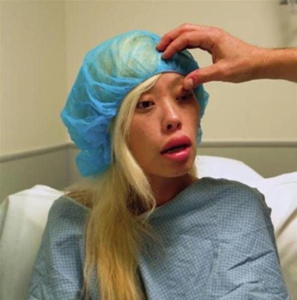 Девушка изменила свою внешность с помощью хирургического вмешательства...