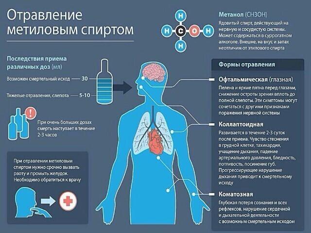 Отравление метиловым спиртом.
