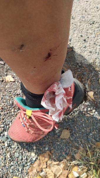 """Женщину в Гремячей Гриве укусила за ногу собака.  Женщина ехала на велосипеде в районе остановки """"Академия... Красноярск"""