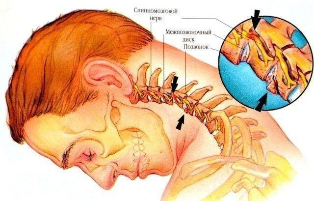 Шейный остеохондроз – весьма опасный недуг, который проявляется болями в спине,...